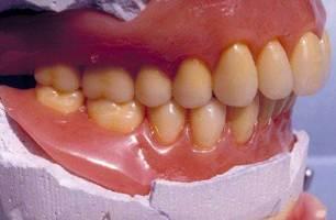 dent porcelaine