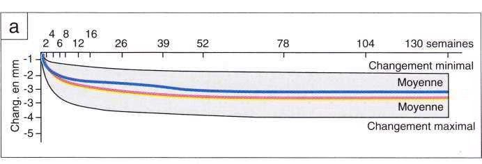 Courbes des changements postextractionneis dans le sens vestibulaire (a)
