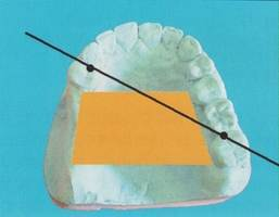 Édentement maxillaire de classe Il : aire de sustentation et axe de rotation principal.