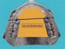 Édentement de classe IV : les dents prothétiques sont en dehors de l'aire de sustentation de la prothèse.