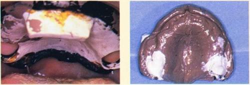L'empreinte des deux tubérosités est réalisée au plâtre Snow-White fluide pour éviter tout déplacement tissulaire.