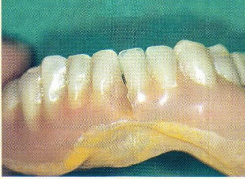 Fracture (en général dans la partie médiane)