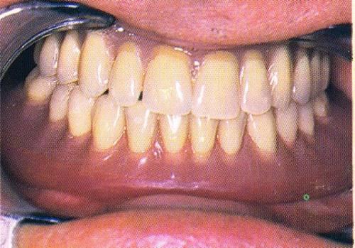 La prothèse d'usage, en bouche (Flexital-Plastulène)
