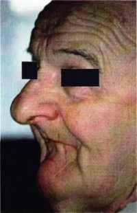 Cas fortement résorbé  sans ses prothèses en bouche