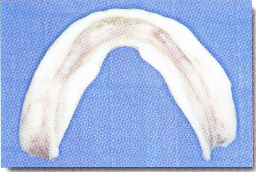 Rectification occlusale des prothèses d'usage avant mise en condition tissulaire.