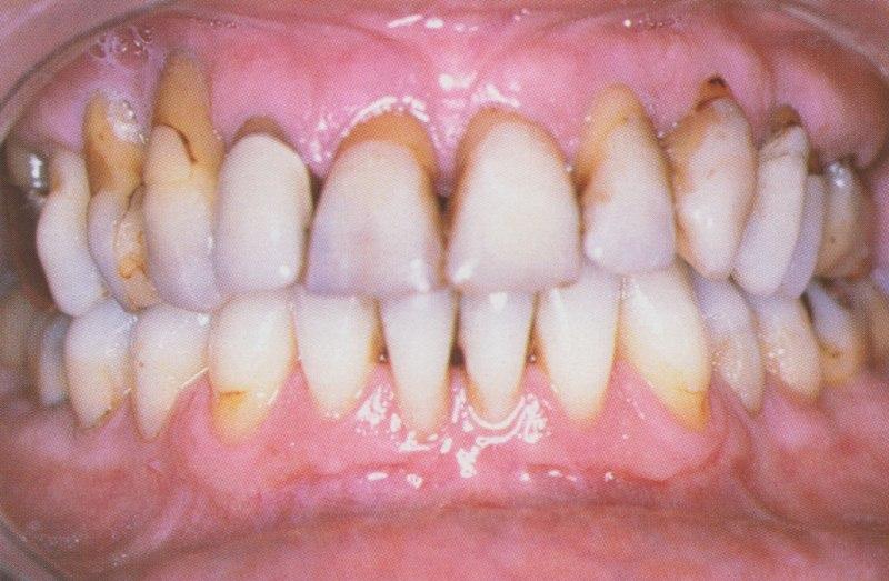 La maladie parodontale pose l'indication de l'extraction de toutes les dents maxillaires.