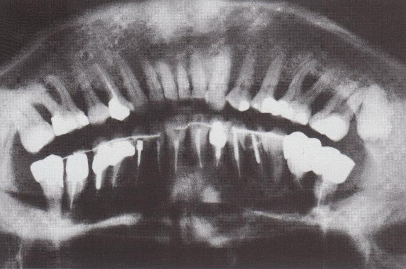 L'arcade antagoniste entièrement dentée doit être réhabilitée par un traitement chirurgical