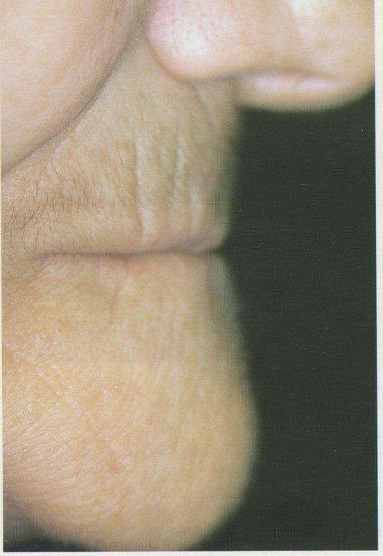 Le profil de la patiente montre une légère proéminence mentonnière.