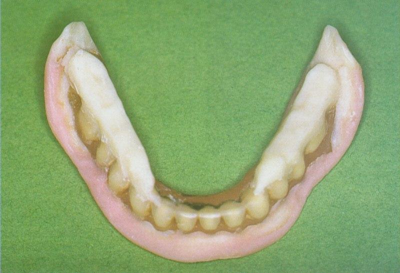 Le traitement est alors poursuivi par le rétablissement de la dimension verticale d'occlusion.