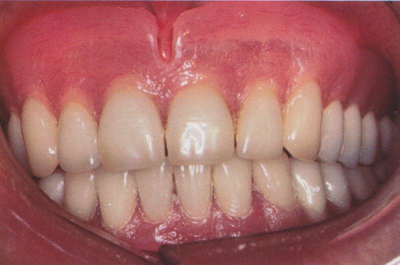 Le traitement du maxillaire réclame une préparation du patient avant la mise en place de la prothèse d'usage