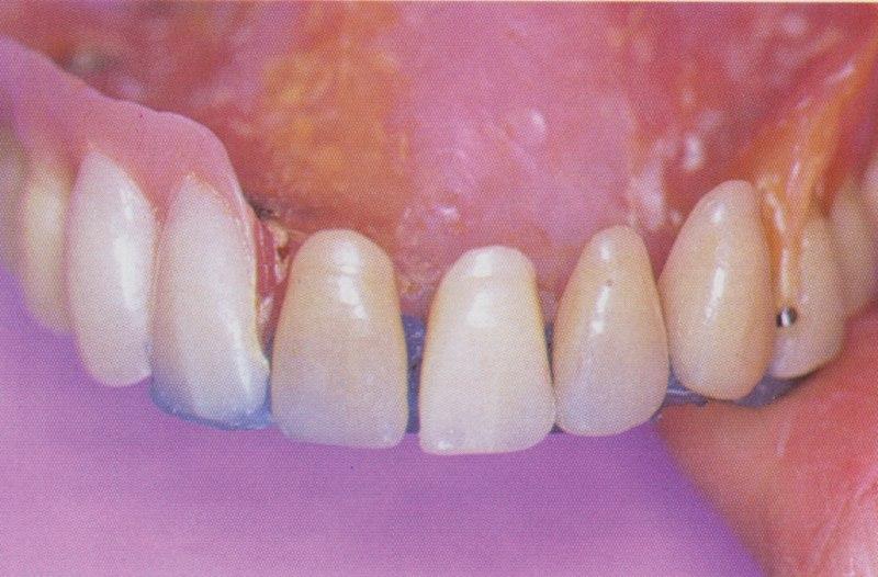 Adjonction extemporanée de quatre dents antérieures et extension de la base dans la zone vestibulaire avec une résine autopolymérisante au fauteuil