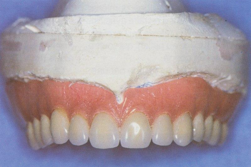Le bridge complet maxillaire doit être déposé avec ses différents piliers.
